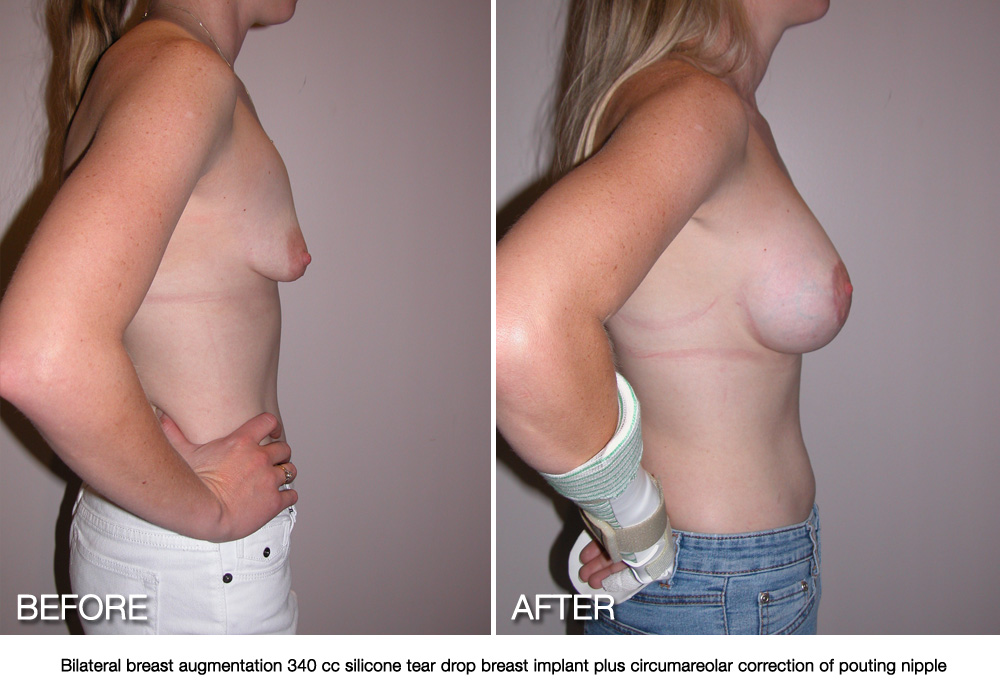 Breast Asymmetry