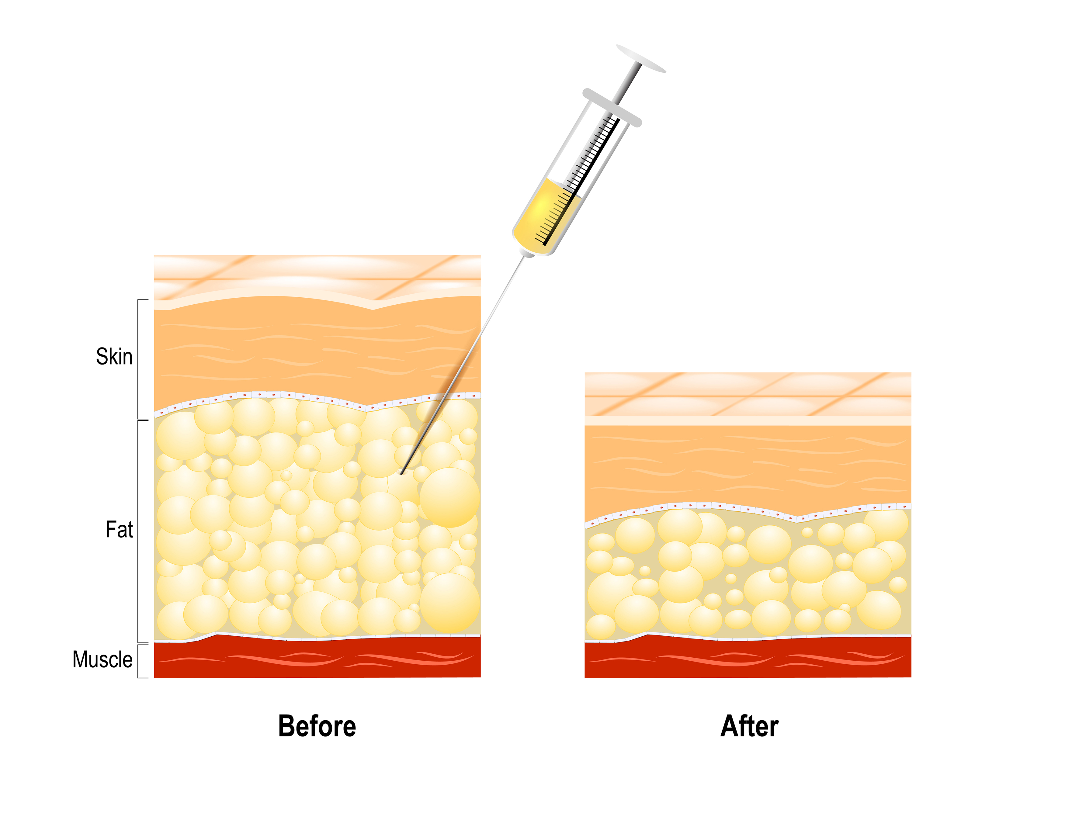 How fat dissolving injections work_614534126