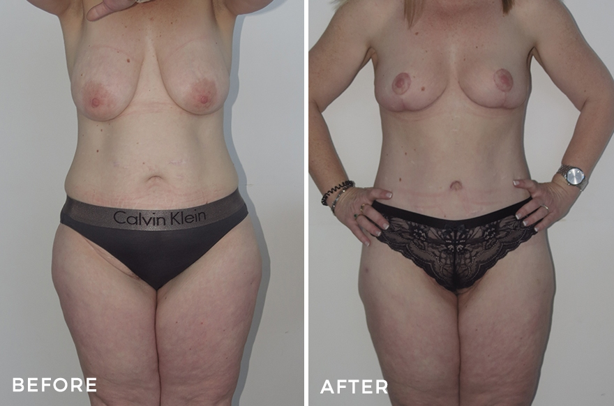 Lower Body Lift + Breast Lift