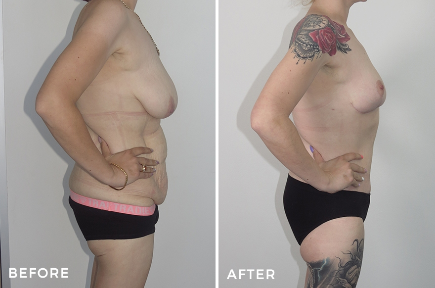 Lower Body Lift + Liposuction + Breast Reduction & Augmentation