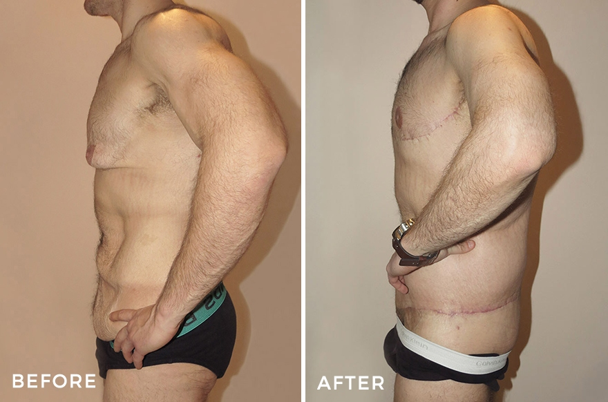 Lower Body Lift + Liposuction + Chest Surgery