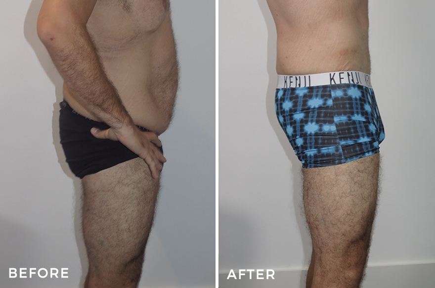 Lower Body Lift + Liposuction + Upper Arm Lift + Chest Surgery + Thigh Lift