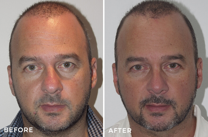 Liposuction + Rhinoplasty