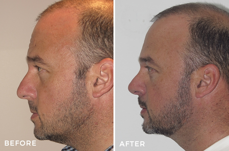 Male Nose Surgery Before & Afters - Dr Jeremy Hunt, FRACS, MBBS