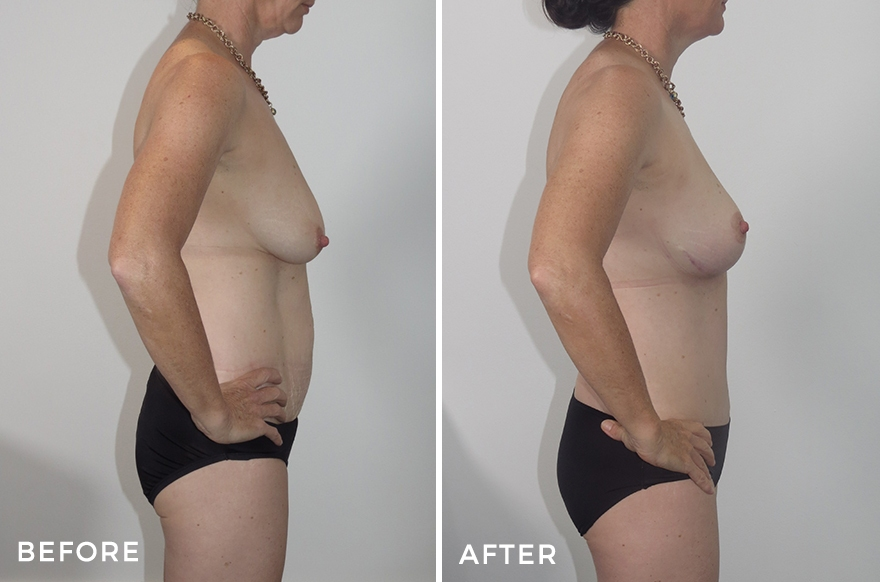 Breast Reduction + Breast lift + Extended Abdominoplasty