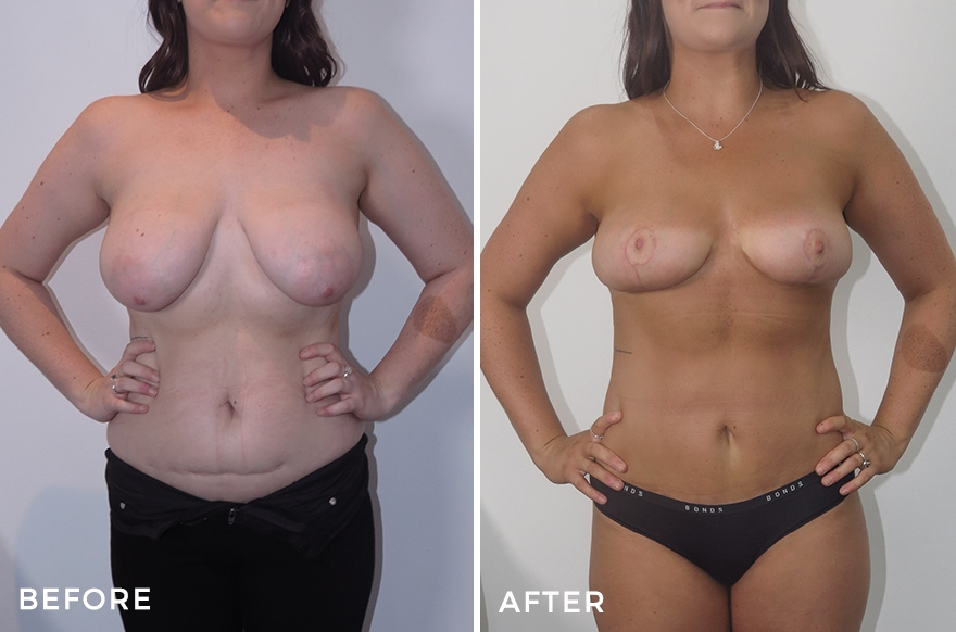 Breast Reduction + Revision Abdominoplasty