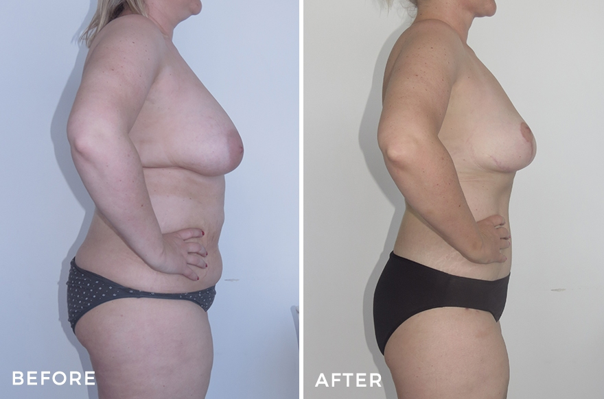 Mummy Makeover: Tummy Tuck + Liposuction + Implant Removal & Breast Lift