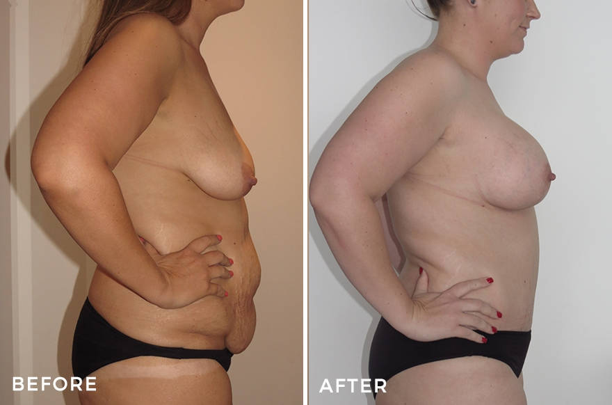 Mummy Makeover: Tummy Tuck + Liposuction + Breast Lift & Implants