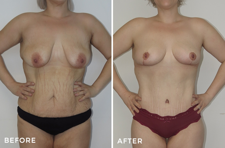 Mummy Makeover: Tummy Tuck + Liposuction + Breast Lift