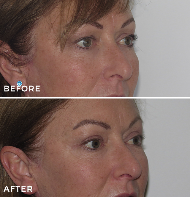 Eyelid Surgery – Upper Blepharoplasty