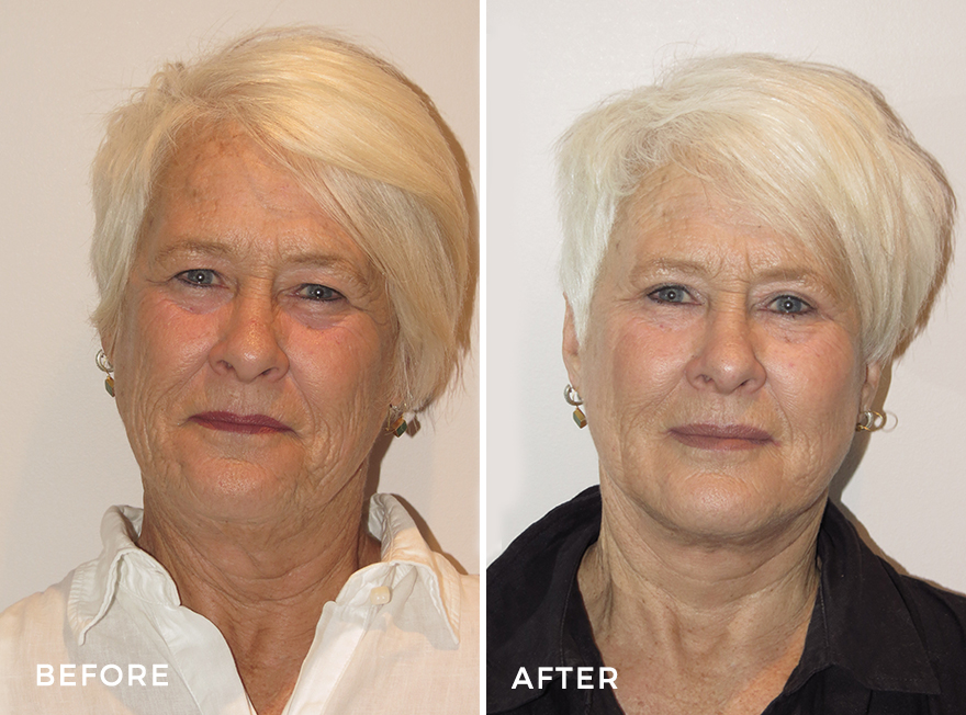 Facelift + Neck Lift + Upper Eyelid Surgery