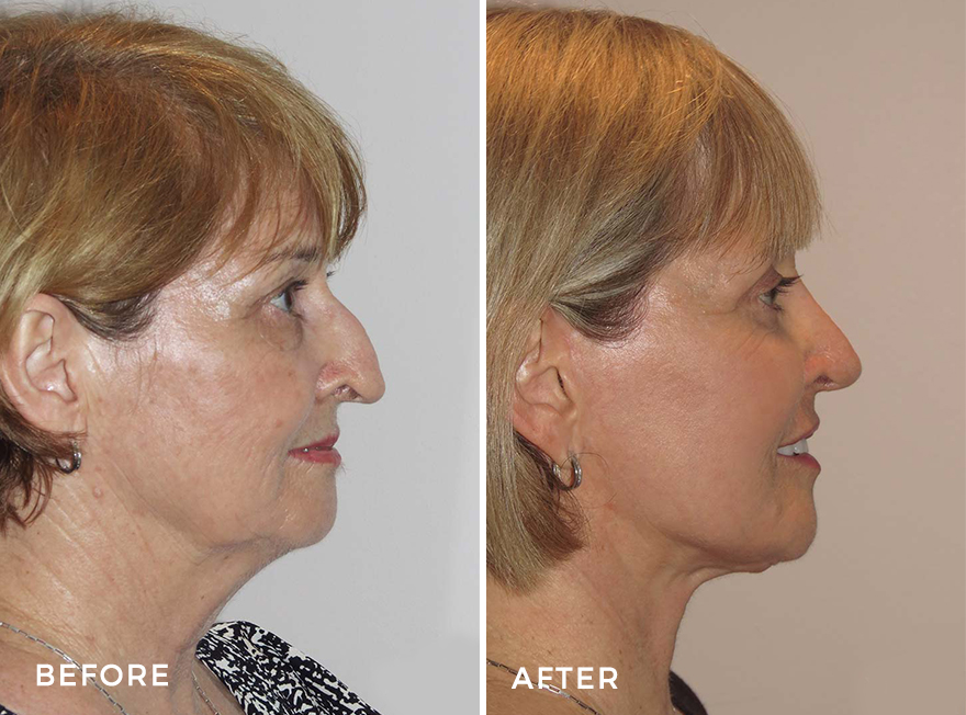 Facelift + Neck Lift + Upper Blepharoplasty + Rhinoplasty