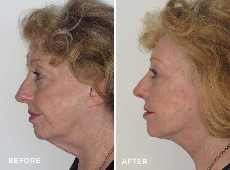 Facelift + Neck Lift + Eyelid Surgery