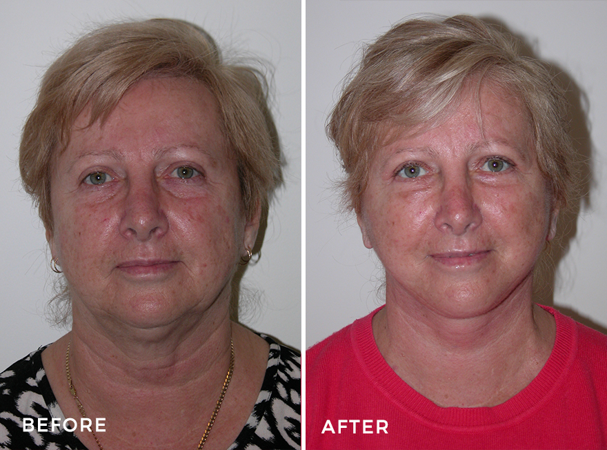 Facelift + Neck Lift + Lower Blepharoplasty