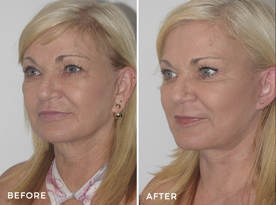 Neck Lift + Facelift