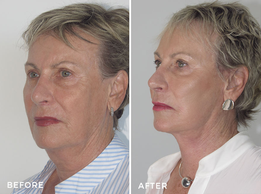 Facelift + Neck Lift