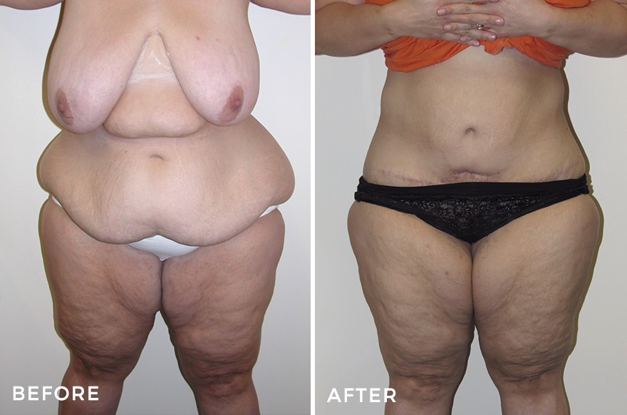 Lower Body Lift + Liposuction + Breast Lift & Augmentation + Arm Lift