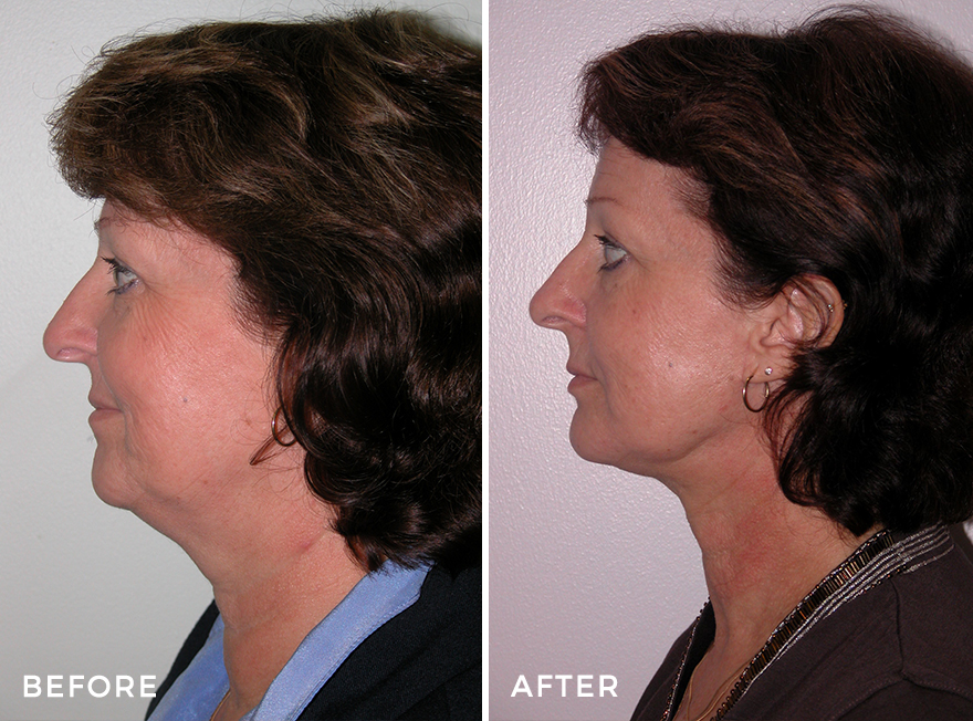 Neck Lift 5_side