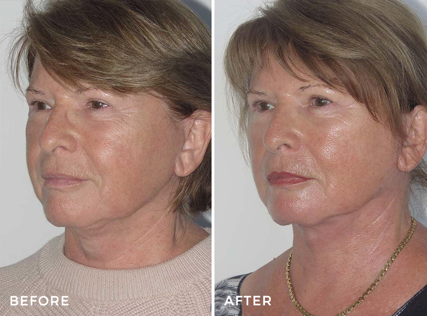 Neck Lift + Secondary Face Lift