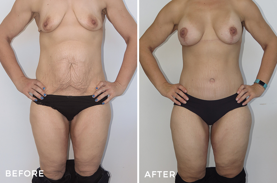 Lower Body Lift + Liposuction + Breast Lift & Augmentation