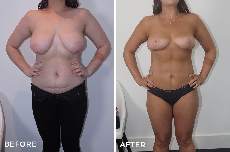 Liposuction + Breast Reduction