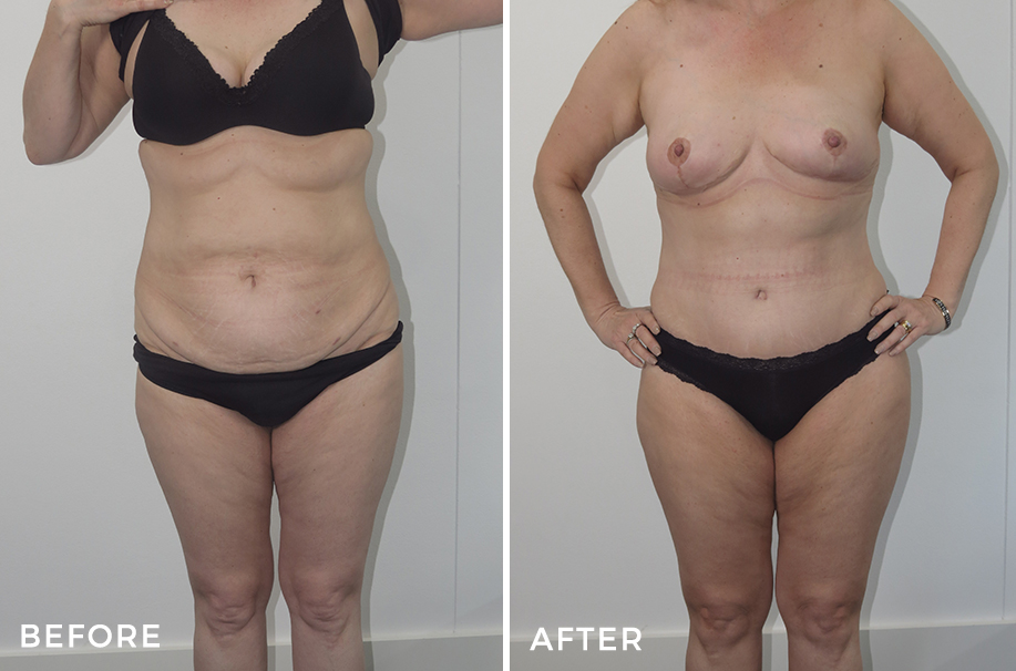 Mummy Makeover: Tummy Tuck + Breast Reduction