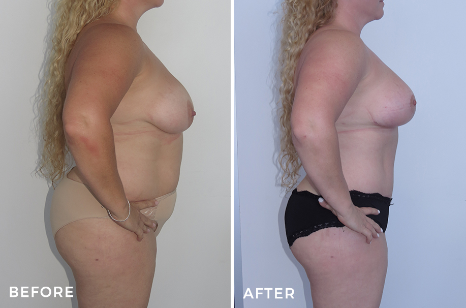 Mummy Makeover: Tummy Tuck + Liposuction + Breast Reduction