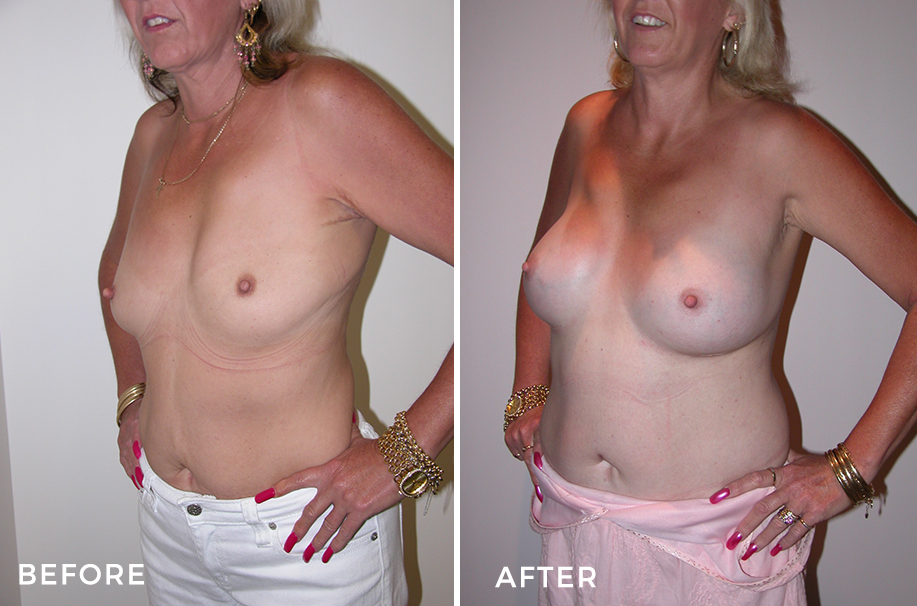 Breast Augmentation + Breast Lift for Asymmetry