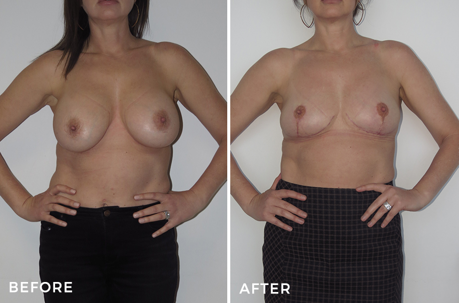 Mastopexy + Implant Capsulectomy Removal