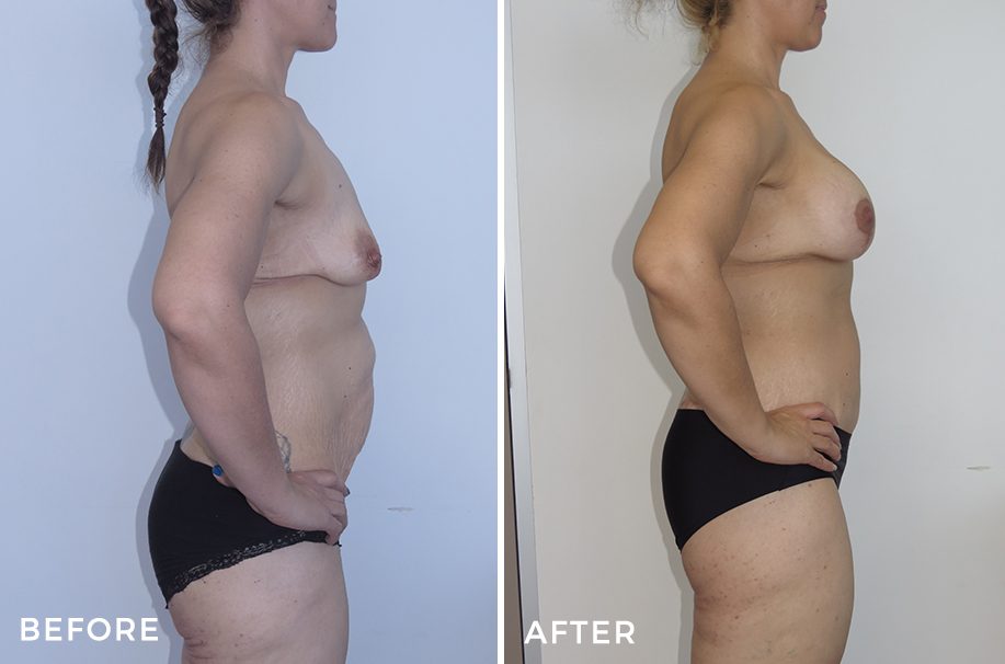 Mummy Makeover: Augmentation Mastopexy + Abdominoplasty