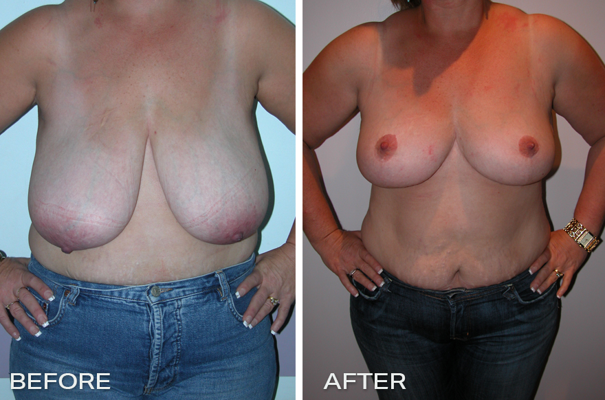 Breast Reduction + Breast Lift