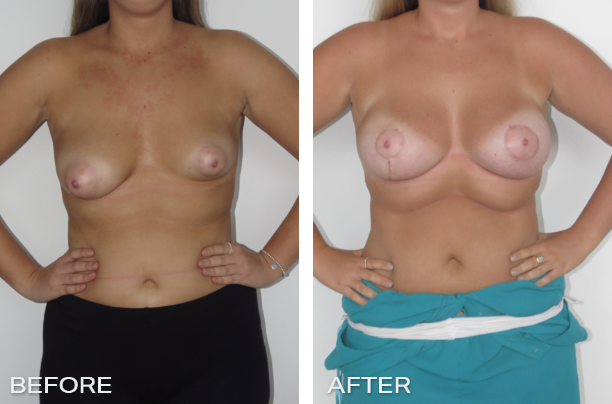 Breast Augmentation for Tuberous Breasts