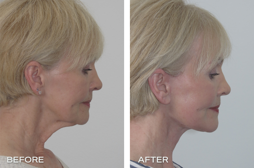 Neck Lift + Face Lift