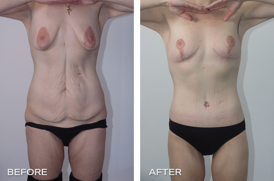 Lower Body Lift + Liposuction + Breast Reduction