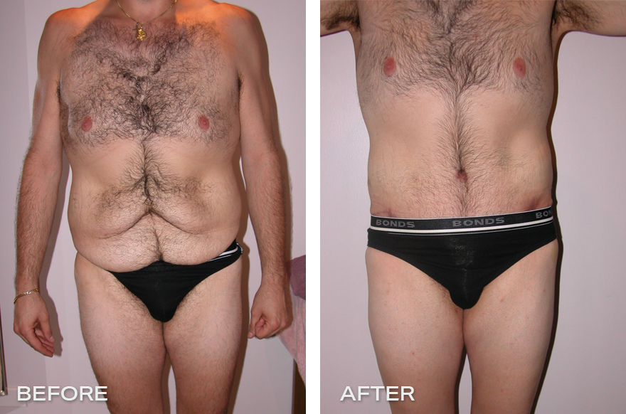 Lower Body Lift + Liposuction + Tummy Tuck