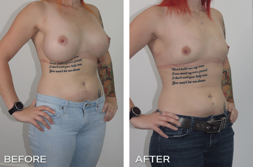 Capsulectomy + Implant Removal