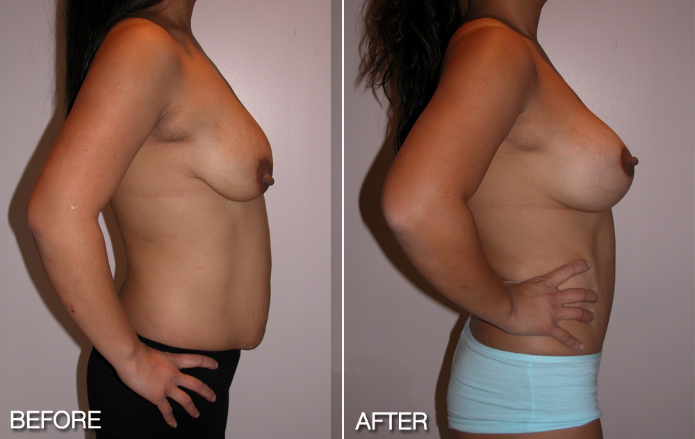 Mastopexy + Abdominoplasty + Breast Augmentation
