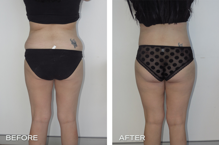Lower Body Lift + Liposuction