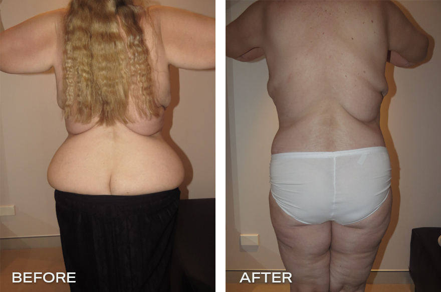 Lower Body Lift + Liposuction + Brachionplasty