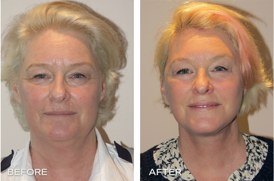 Face Lift + Neck Lift