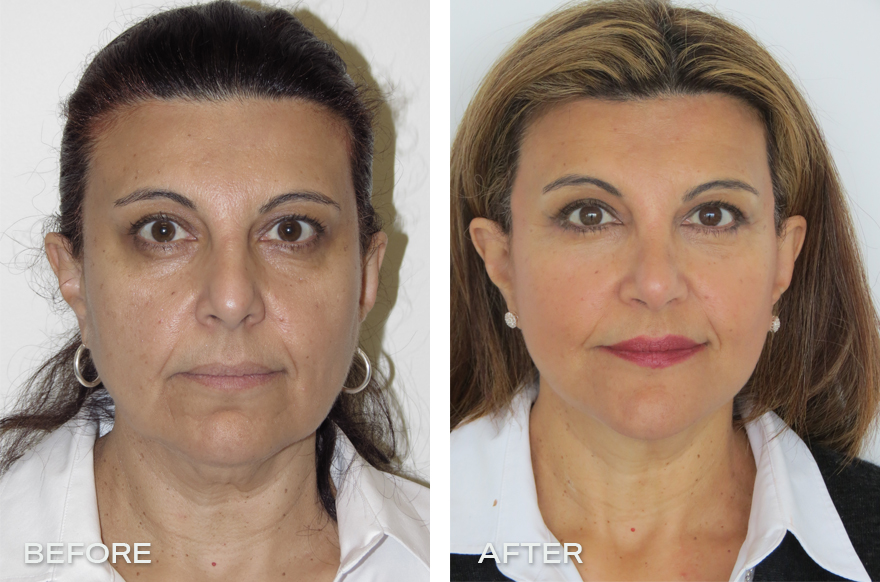 Face Lift + Neck Lift + Rhinoplasty + Genioplasty
