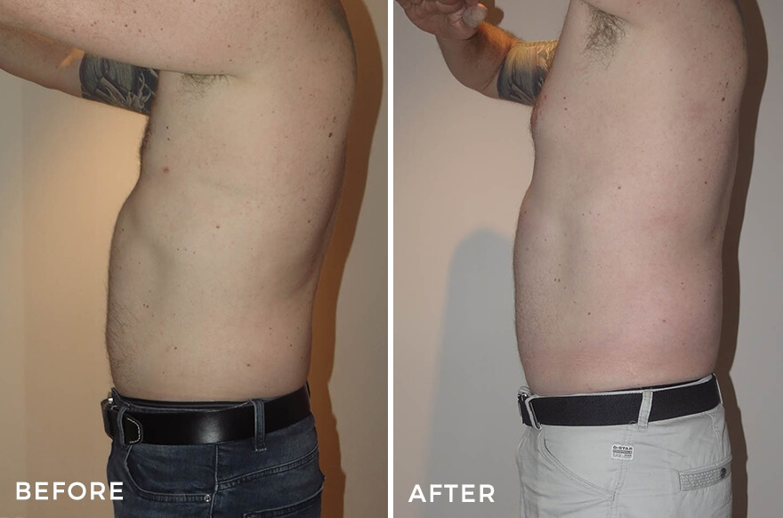 https://www.drjeremyhunt.com.au/wp-content/uploads/2020/02/Male-Lipo-1_side-1.jpg