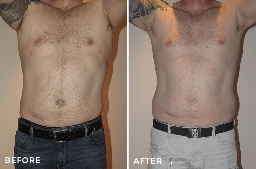 Male Body Contouring Before After Images Dr Jeremy Hunt